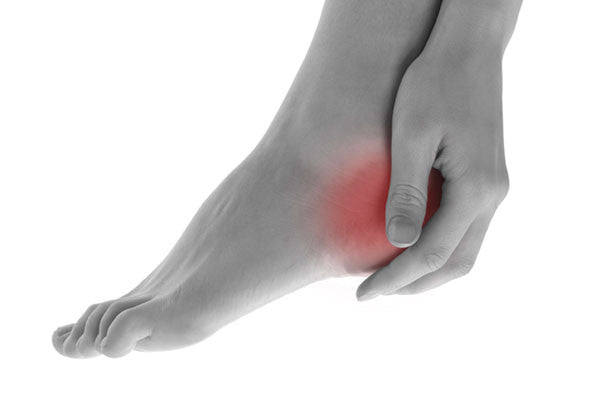 Introduction to heel pain and plantar fasciitis