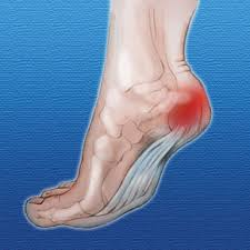 location of fat pad atrophy of the heel