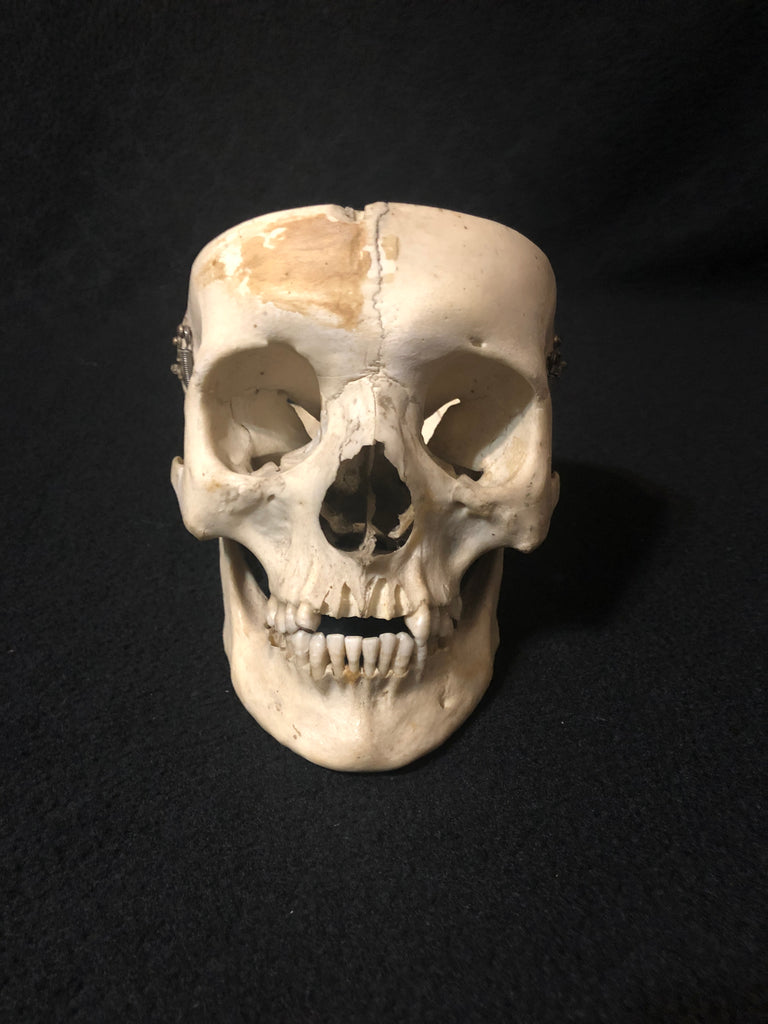 A Real Human Skull without Calvarium