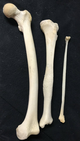 A Real Human Leg Bone Set with Healed Fracture of Tibia – 6 Brains