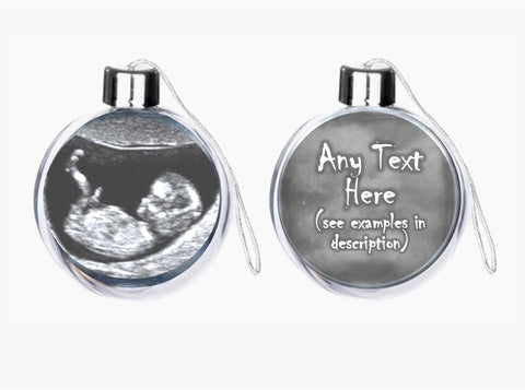 Baby Scan Bauble
