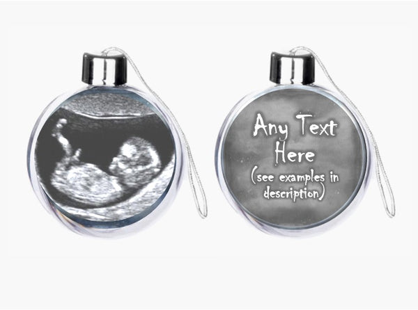 Personalised Baby Scan Bauble