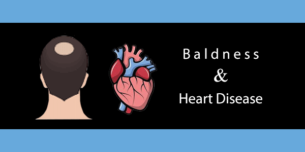 Baldness Is A Sign of Heart Disease