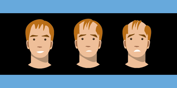 Dihydrotestosterone Causes Hair Loss (Androgenetic Alopecia)