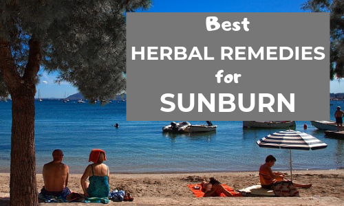 herbal remedies for sunburn that actually work