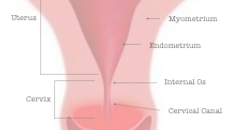 Cervicitis: What is it?