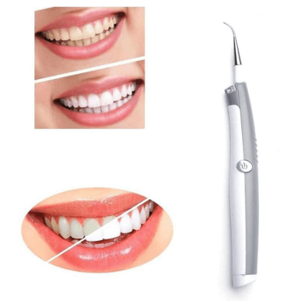 Ultrasonic Tooth Stain Remover - FeelLifeStore