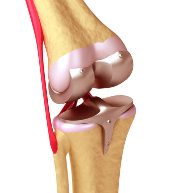 Delaying total knee replacement surgery with an Active650 Knee Support