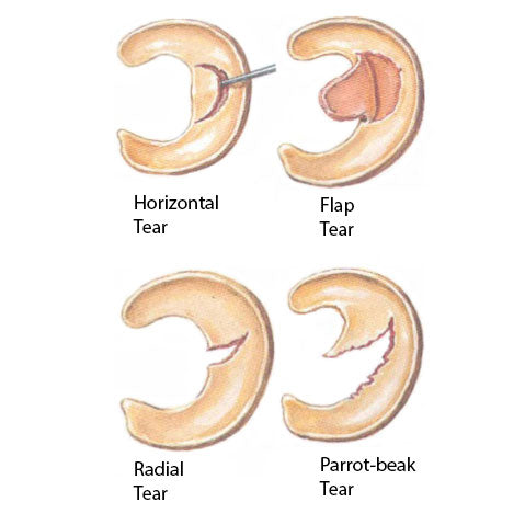 Meniscal tears and injury