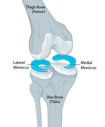 Meniscus damage and knee injury pain