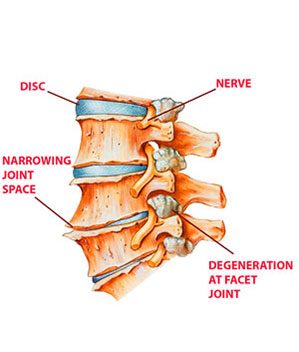 Arthritis in low back lumbar area