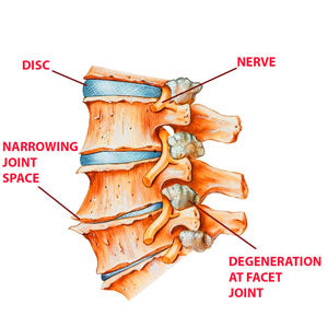 Arthritis and degeneration of the lumbar spine