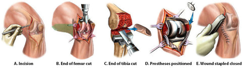 Knee replacement surgery, total and partial operation