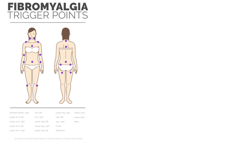 fibromylagia trigger points