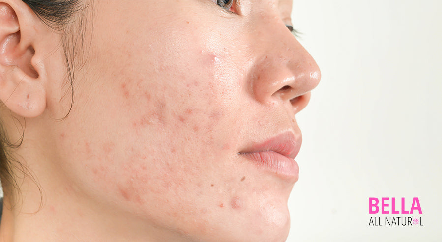Acne Face Woman