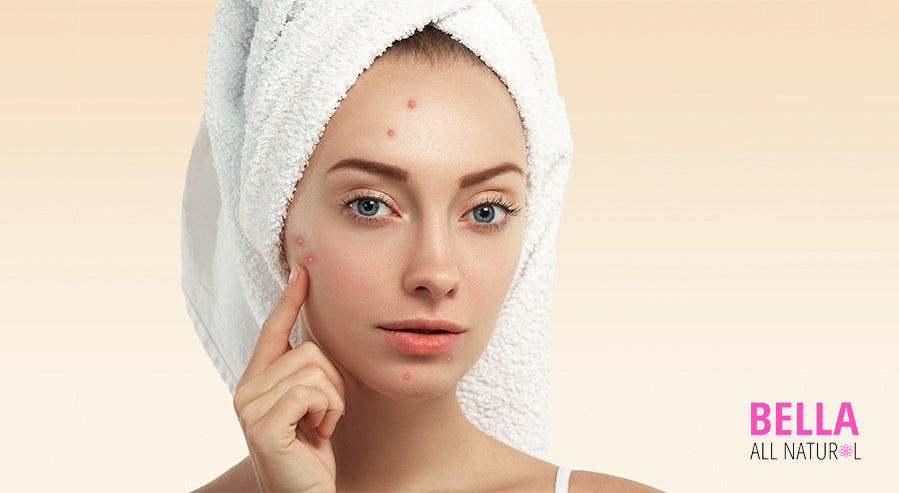 Woman Pointing Acne