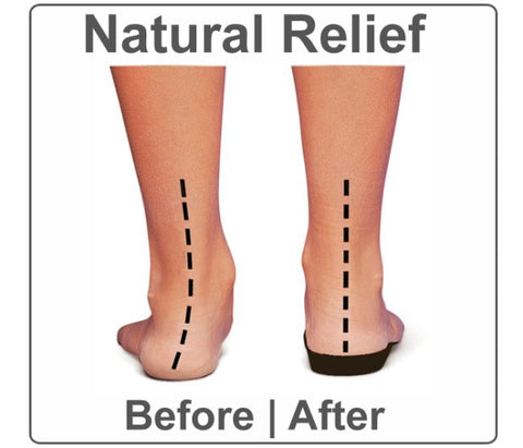 This image shows the difference with natural relief