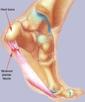 This image shows where abouts on the foot the pain will strain