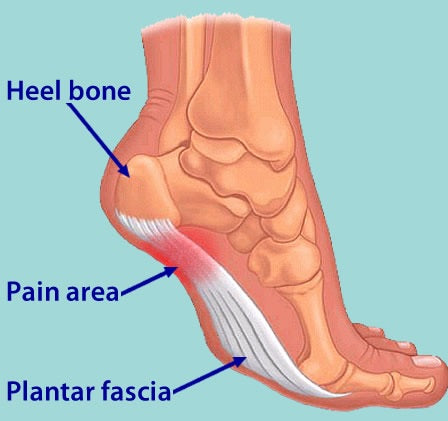 A diagram showing where abouts on the foot you get plantar fascia