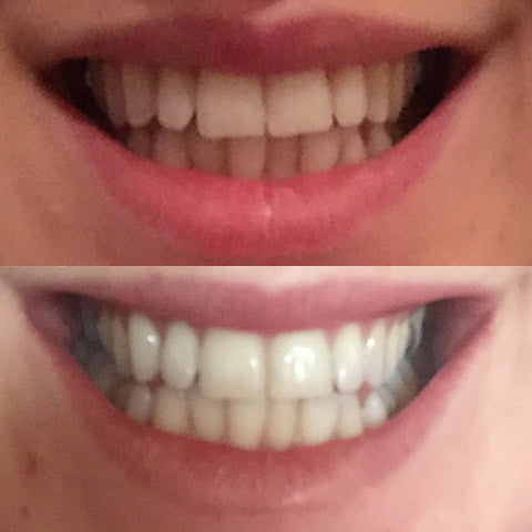 Amazing Whitening Kit !