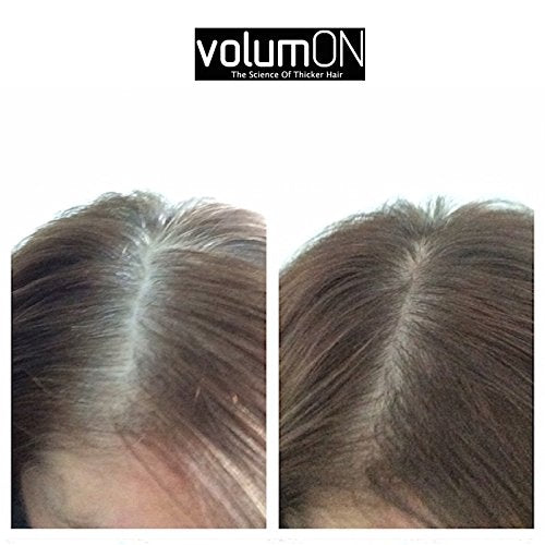 Hair Loss Concealer and Root Cover Up Kit by  Volumon