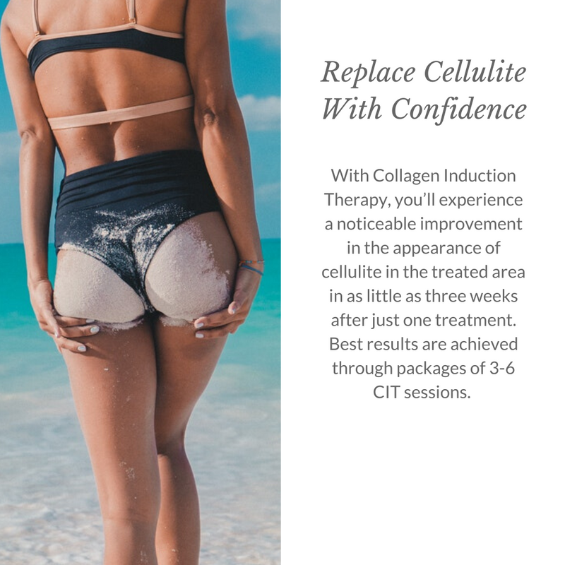 Replace Cellulite With Confidence - Italic 1080x1080