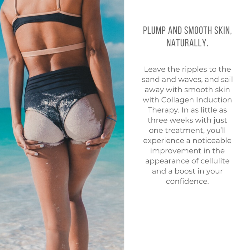 Replace Cellulite With Confidence - All Cap 1080x1080