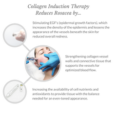 Collagen Induction Therapy Reduces Rosacea By... - 800x800