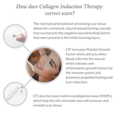 How does Collagen Induction Therapy correct scars? - Italic - 800x800