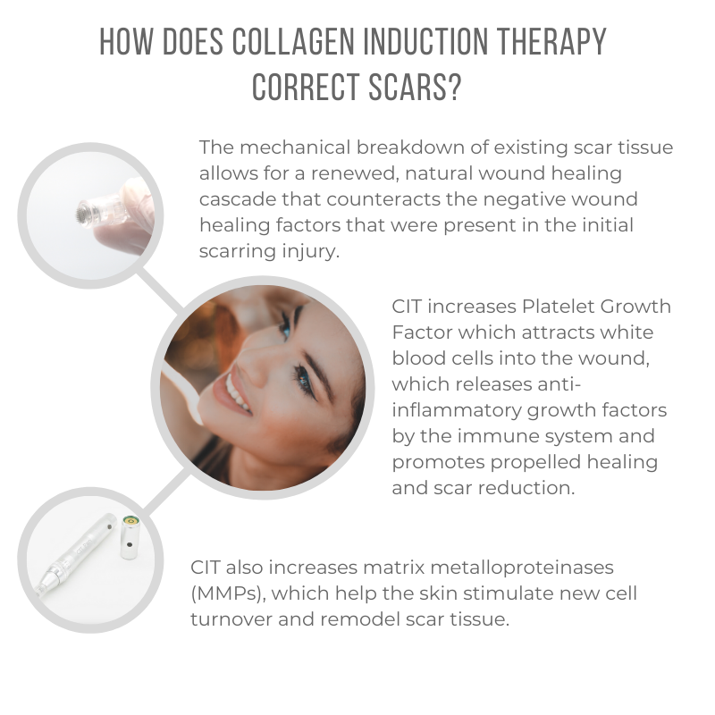 How does Collagen Induction Therapy correct scars? - All Cap - 800x800