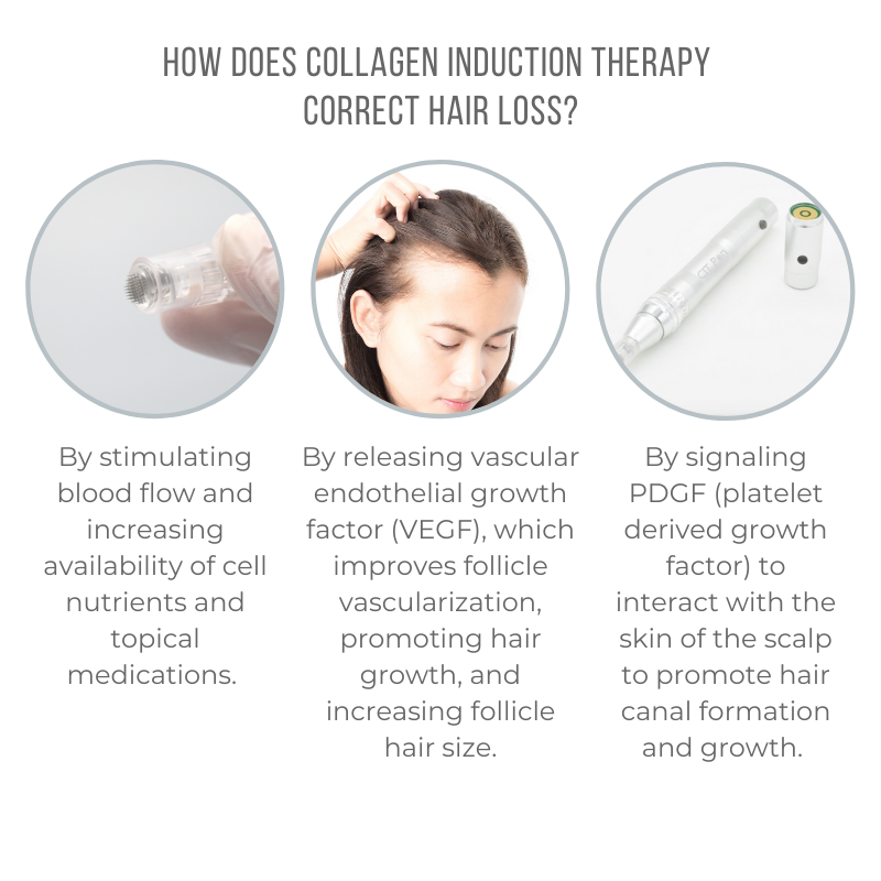 How Does Collagen Induction Therapy correct hair loss - All Cap - 800x800
