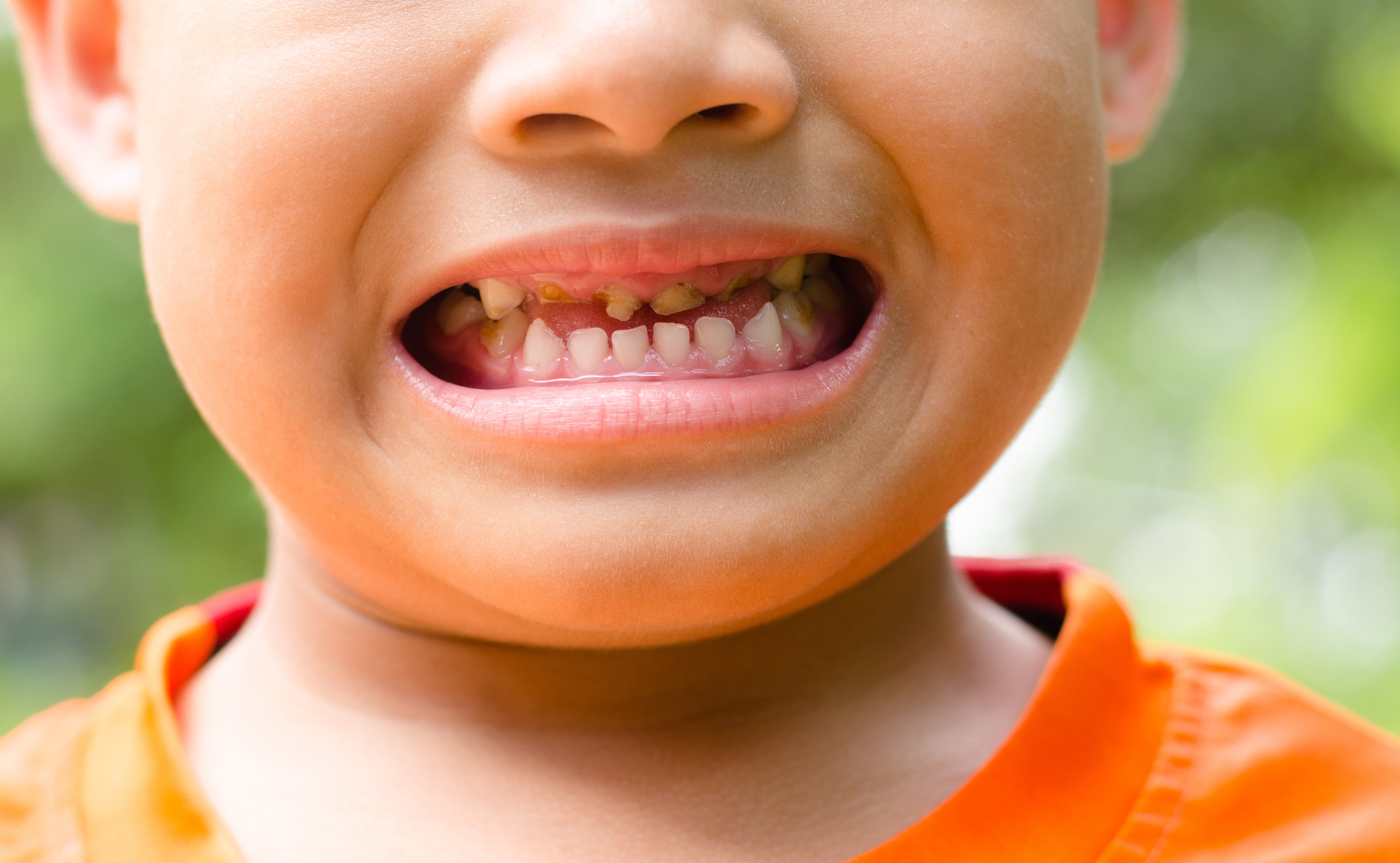 It's Children's Dental Health Month – Use The New Secret Weapon For Parents In The Battle Against Kids' Tooth Decay