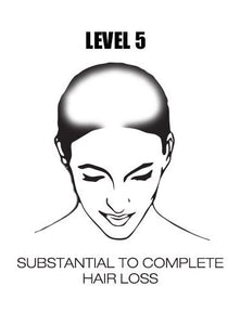 Level 5 Hair Loss