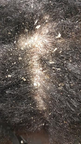 IMPORTANCE OF EXFOLIATING THE SCALP