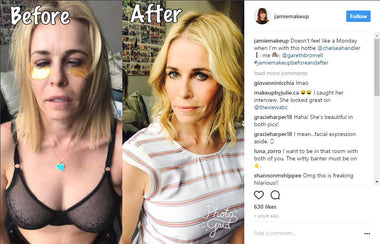 Chelsea Handler Wears Golden Touch 24k Techno-dermis Eye Mask from Adore