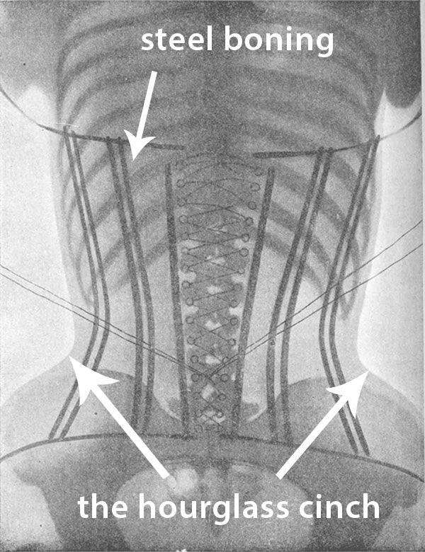6d8f3c00236f8 Waist training in a steel boned corset will NOT modify your hips in any  way. Your hip bones are going to stay put.