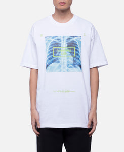 X-Ray T-Shirt (White)