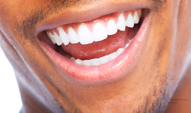 COCONUT TEETH WHITENING