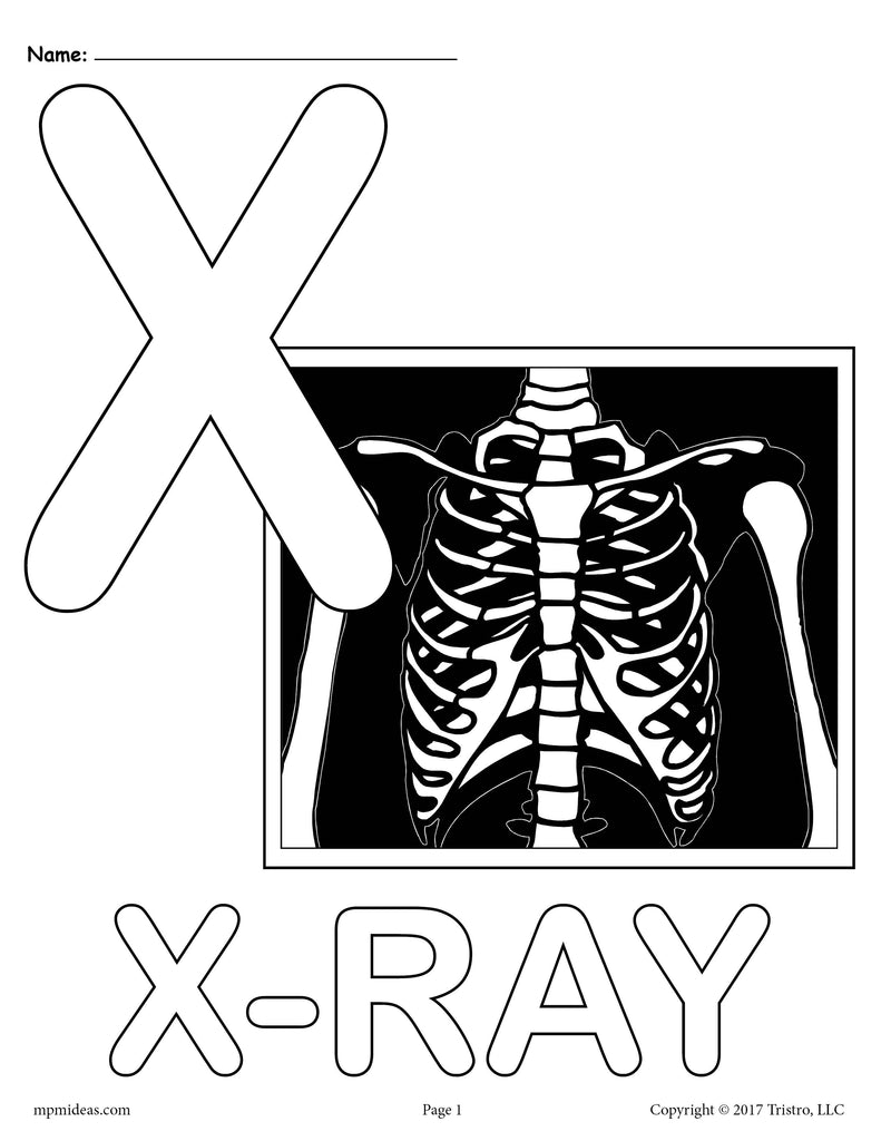 Letter X Alphabet Coloring Pages - 3 Printable Versions!