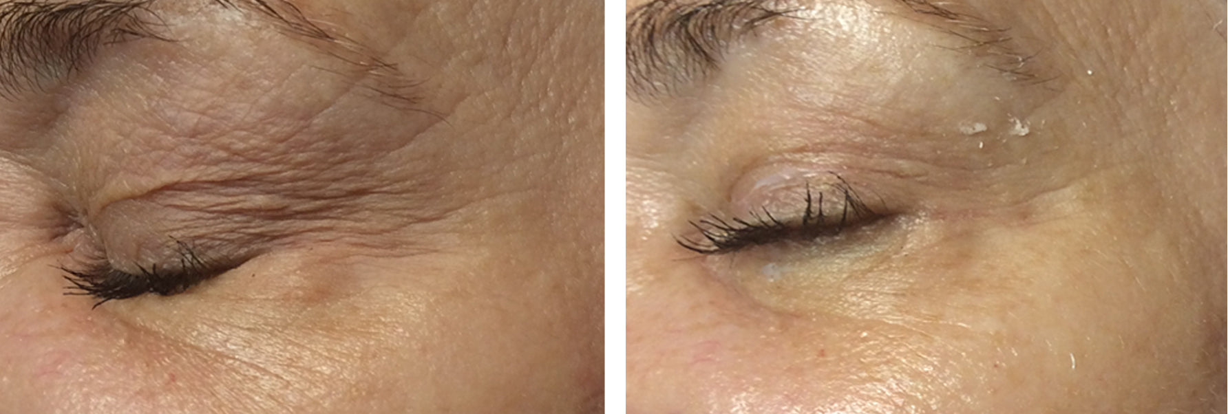 women-eyes-treatment-before-after-results