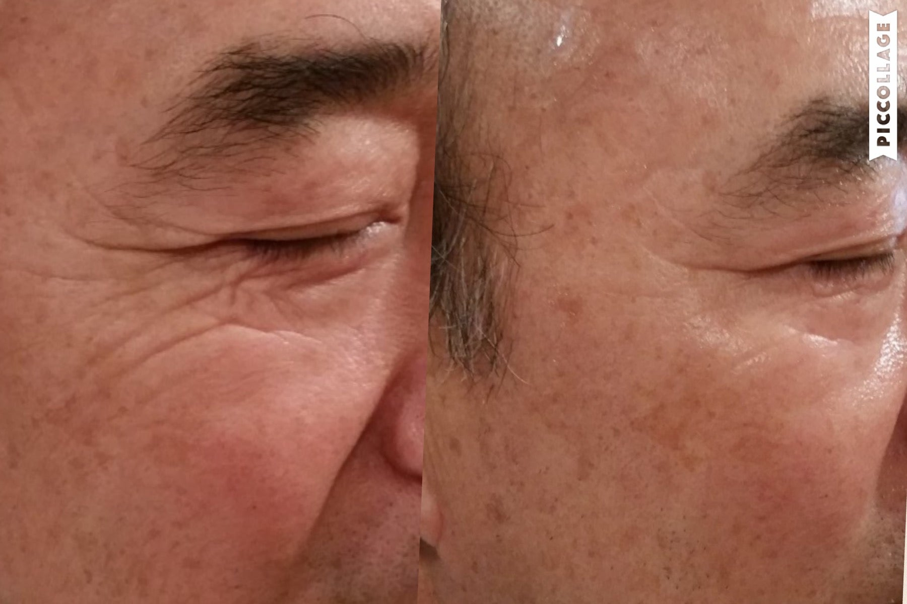 before-after-eyes-treatment