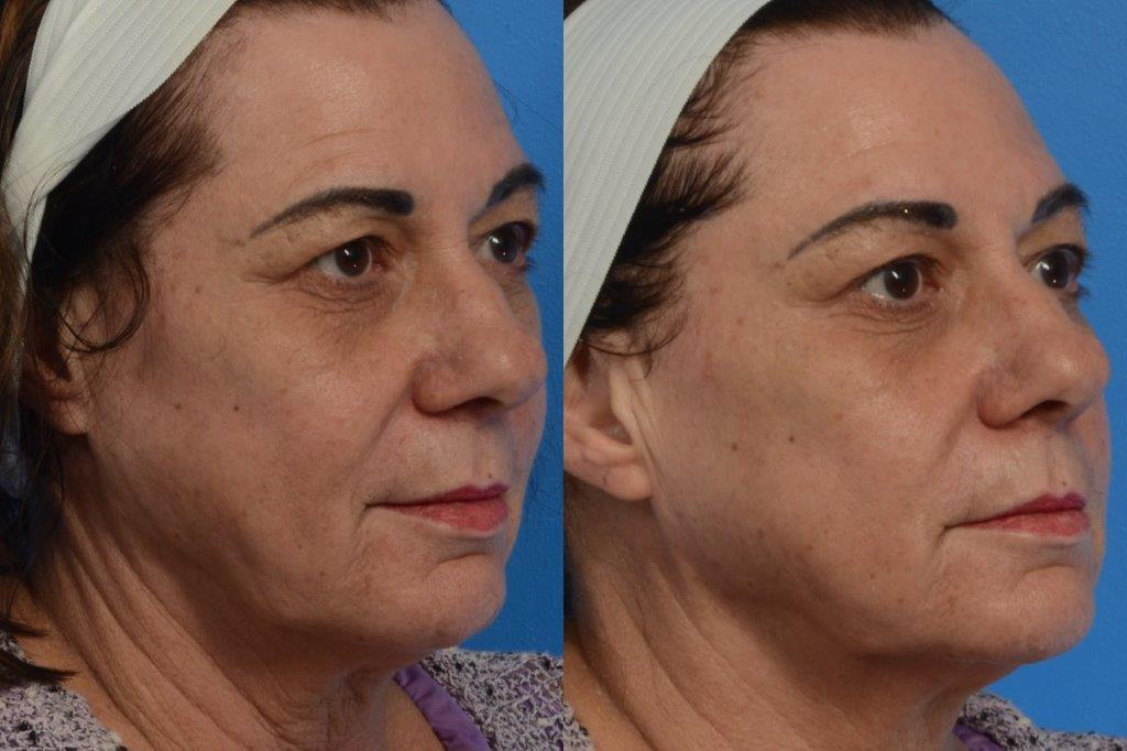 Face-skin-treatment-results