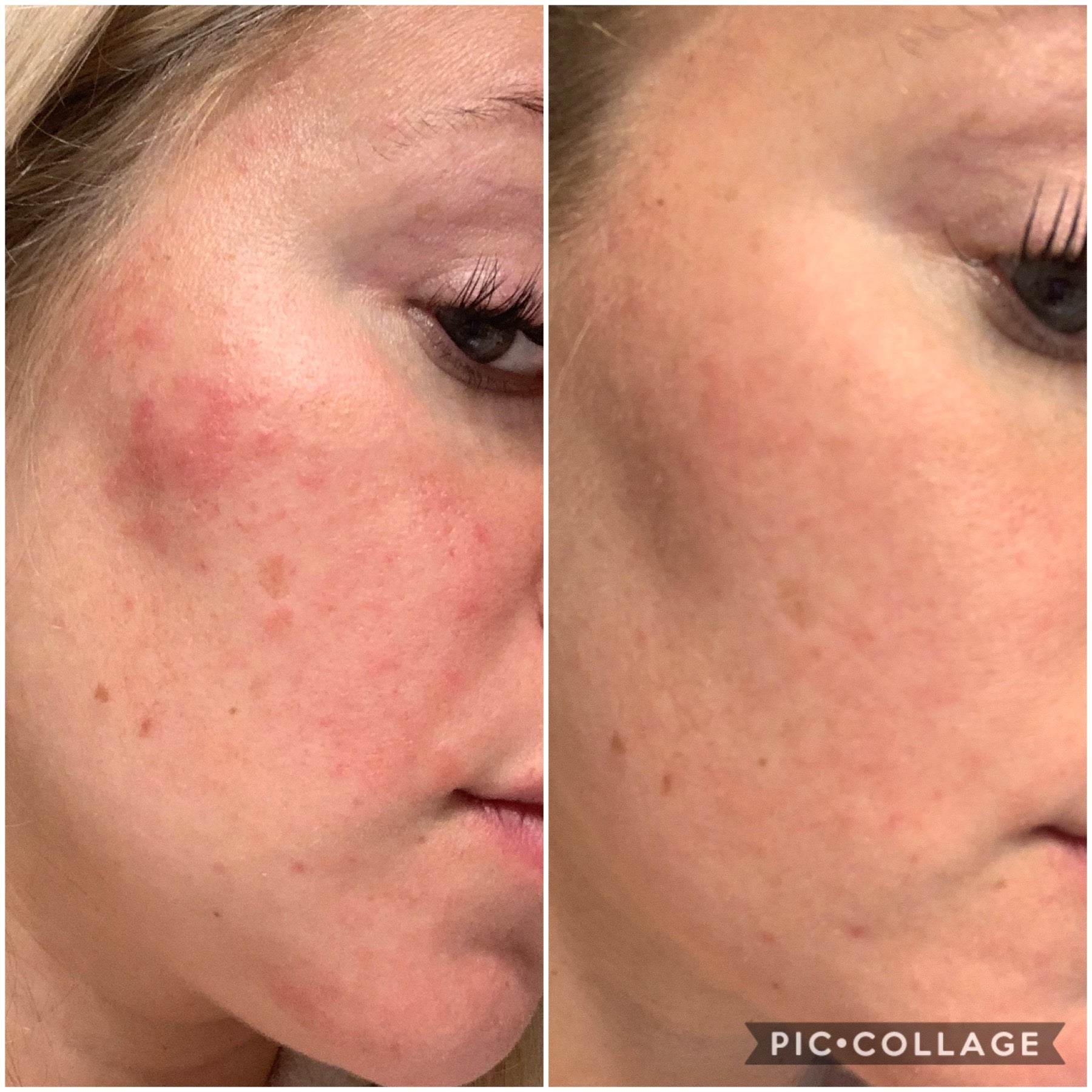 Before-after-face-skin-results