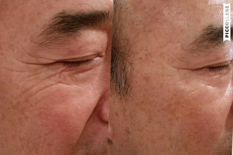 CO2LIFT Effect - Eye Region for Men
