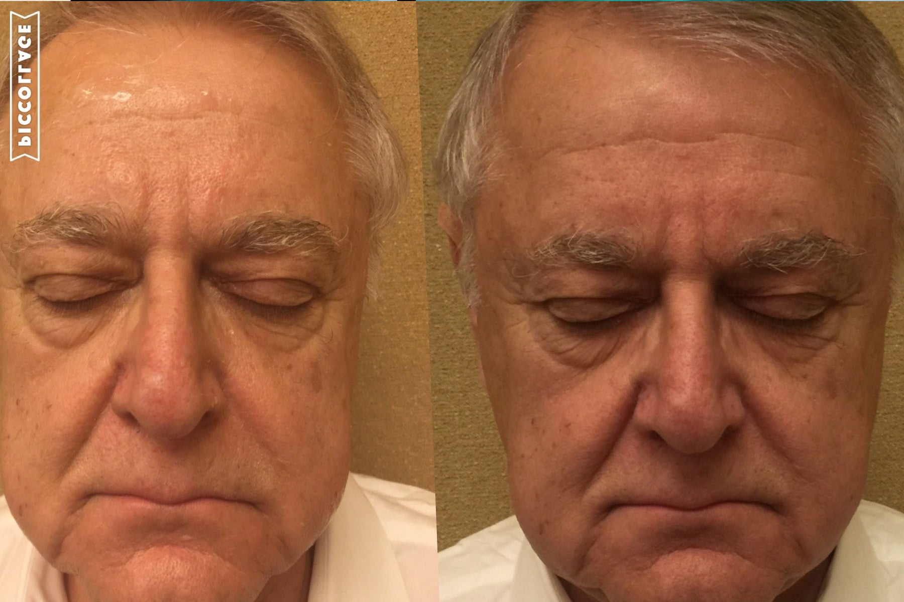 Face-treatment-results
