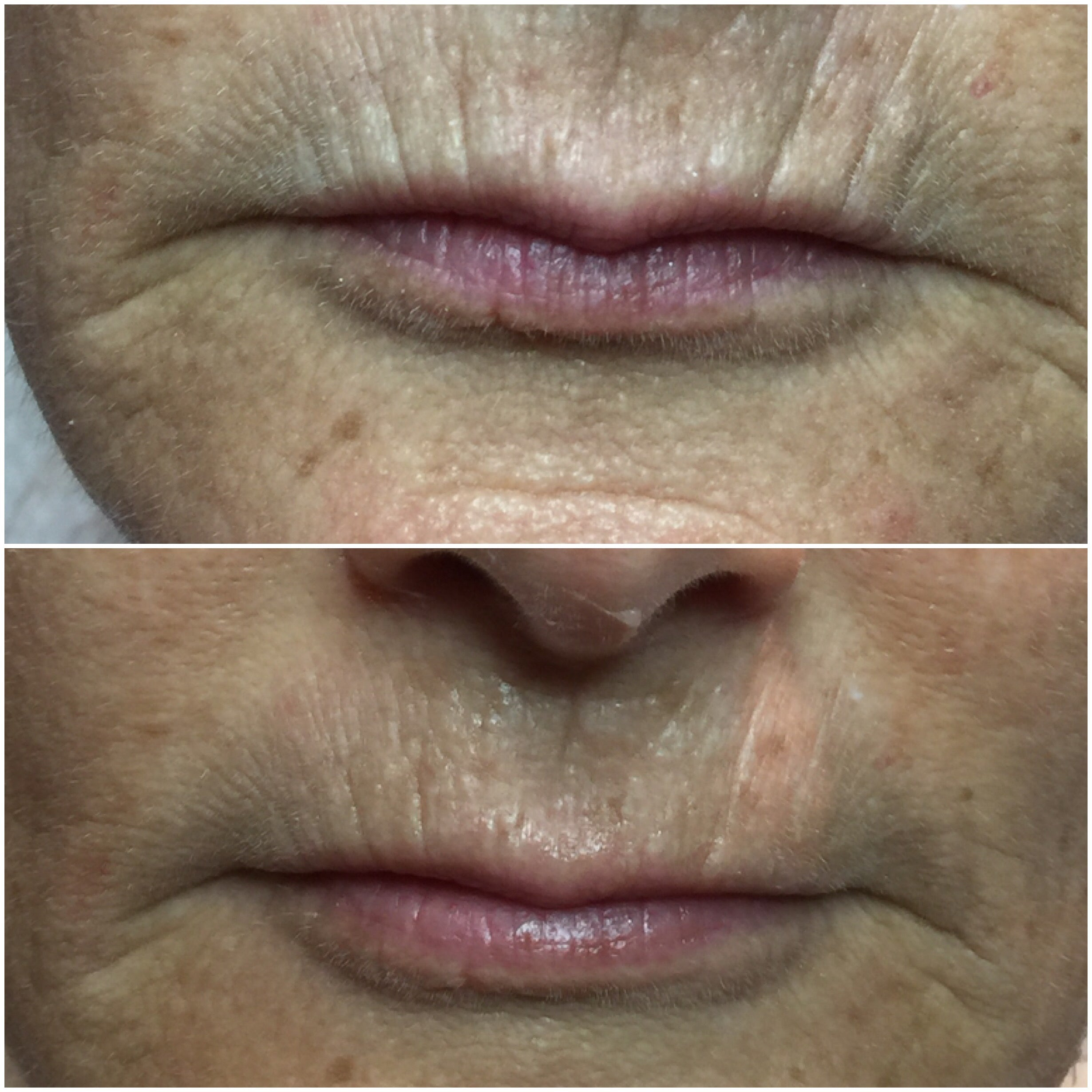 Before-after-mouth-treatment-results