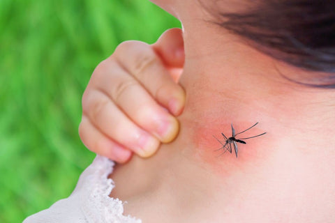 Mosquito Biting Neck