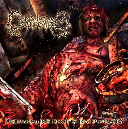 Cephalotripsy ‎– Uterovaginal Insertion Of Extirpated Anomalies CD
