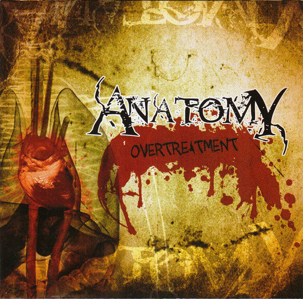 Anatomy - Overtreatment CD