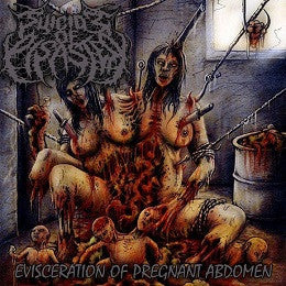 SUICIDE OF DISASTER | Evisceration of pregnant Abdomen CD
